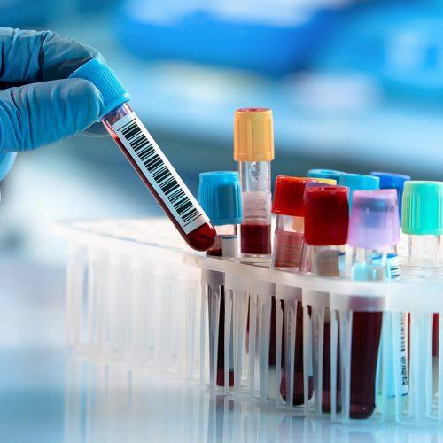 Трудности при диагностициране на борелиоза